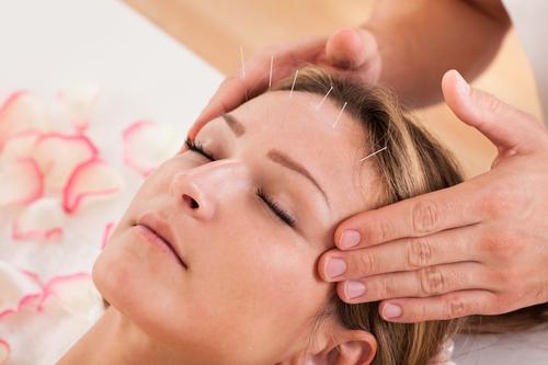 Acupuncture Bundaberg